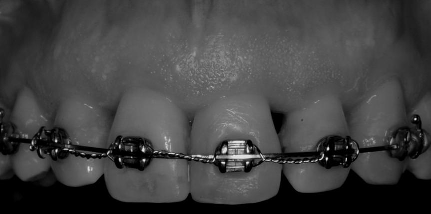 ortodoncia-adultos-carballo