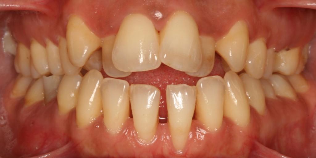 Tratamiento periodontal higienistas 2017 Completa.00