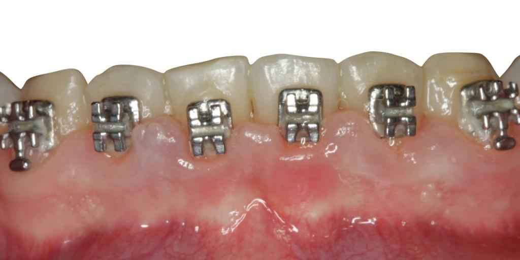 Tratamiento periodontal higienistas 2017 Completa.002