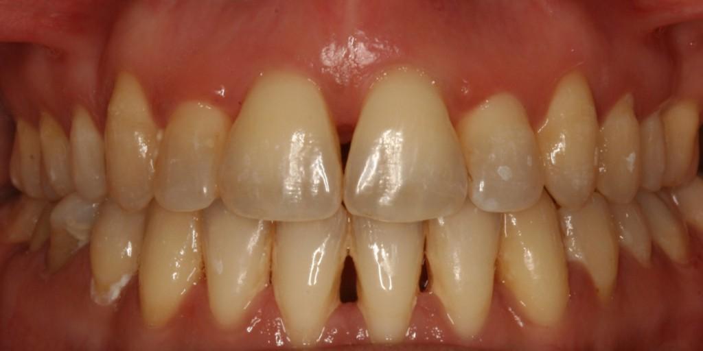 Tratamiento periodontal higienistas 2017 Completa.001