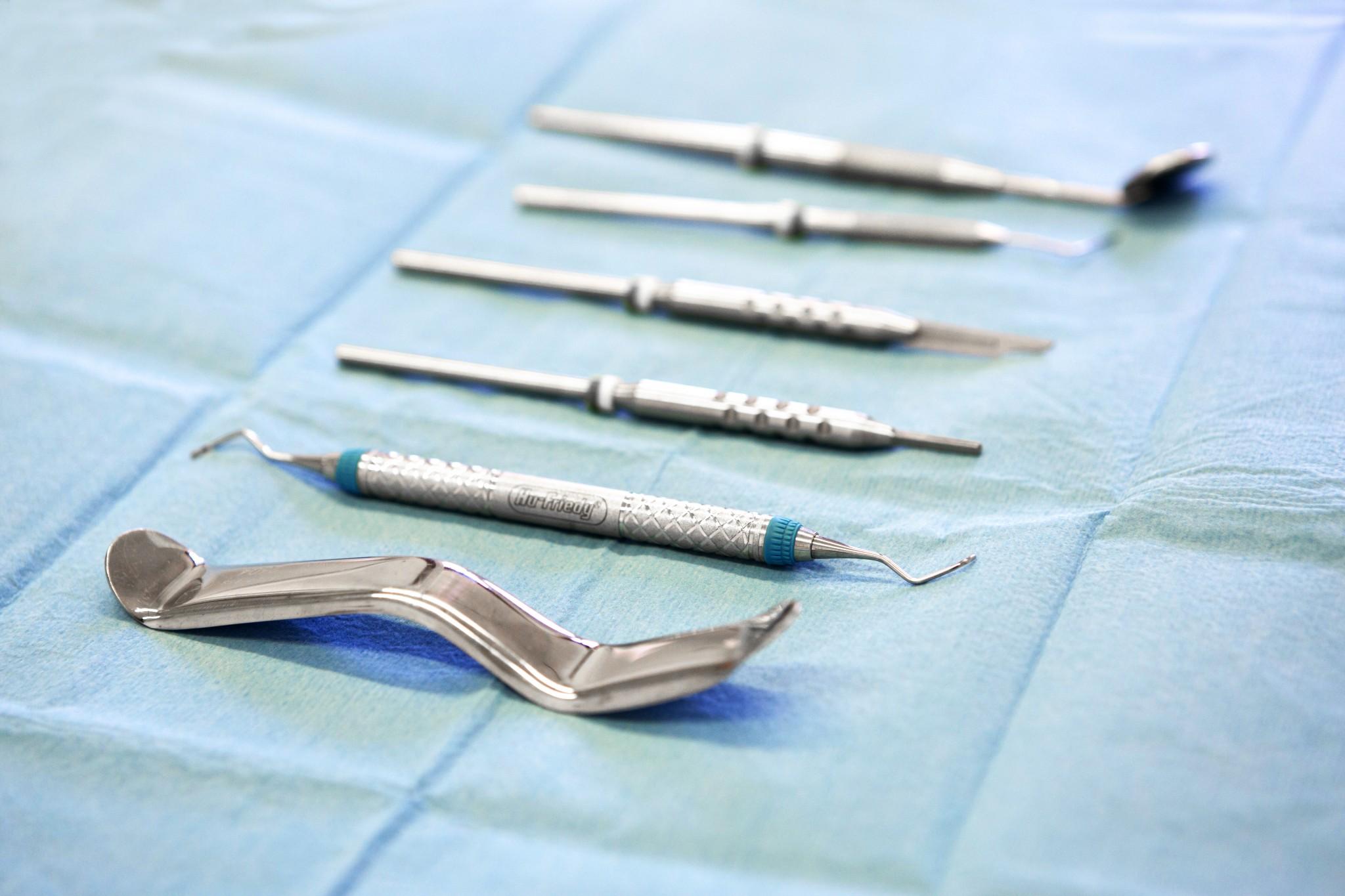 dolor-extracción-dental