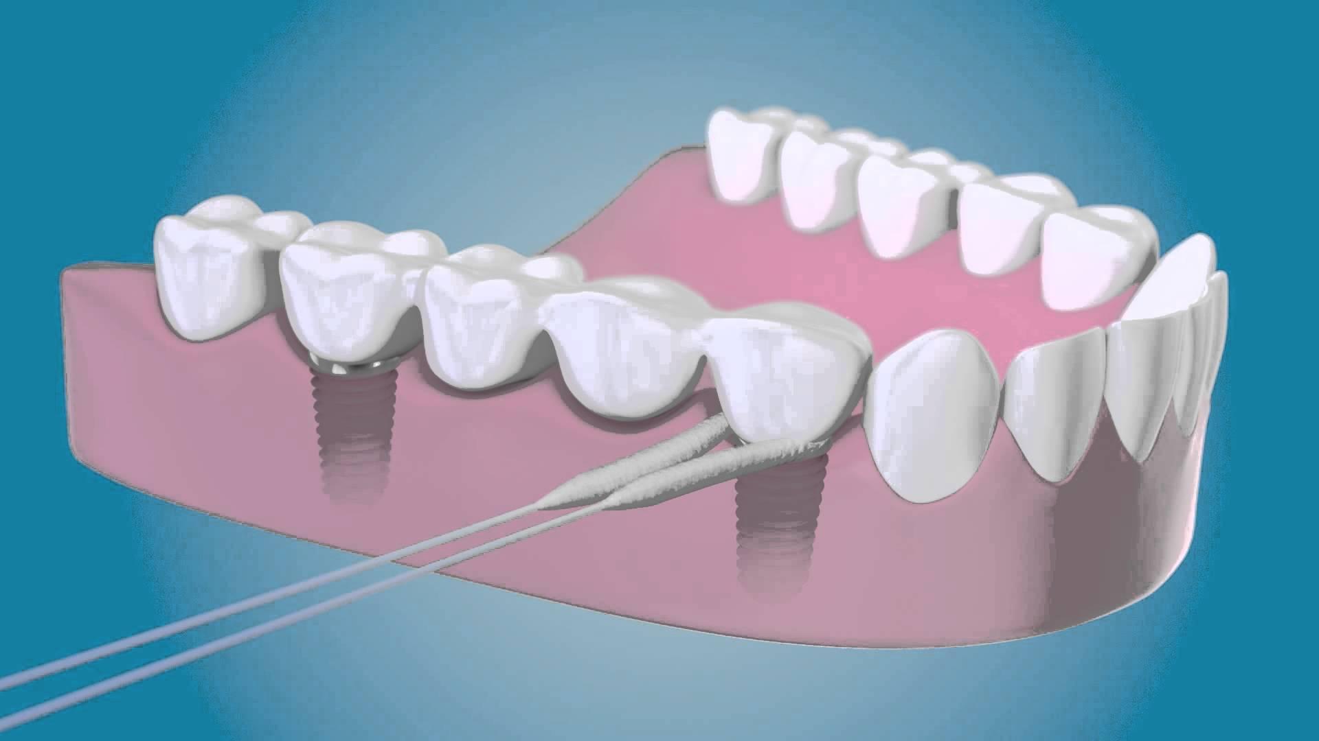 191 Como Limpiar Los Implantes Dentales Cl 237 Nica Dental En