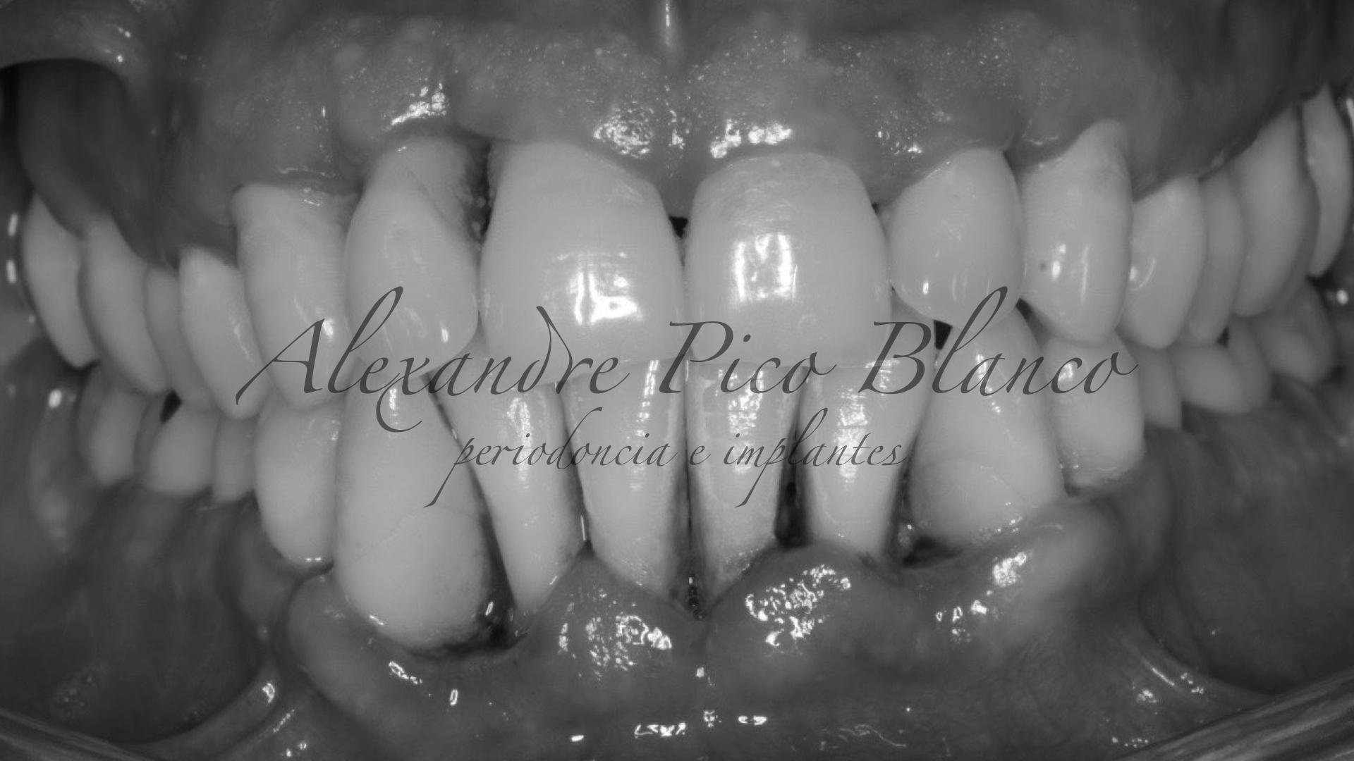periodontitis-agresiva