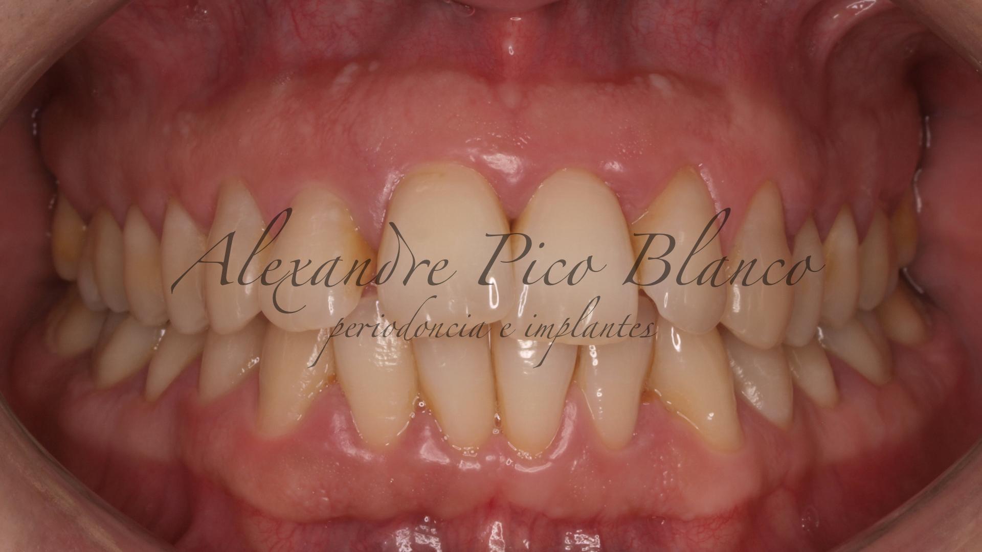 periodontitis-embarazo