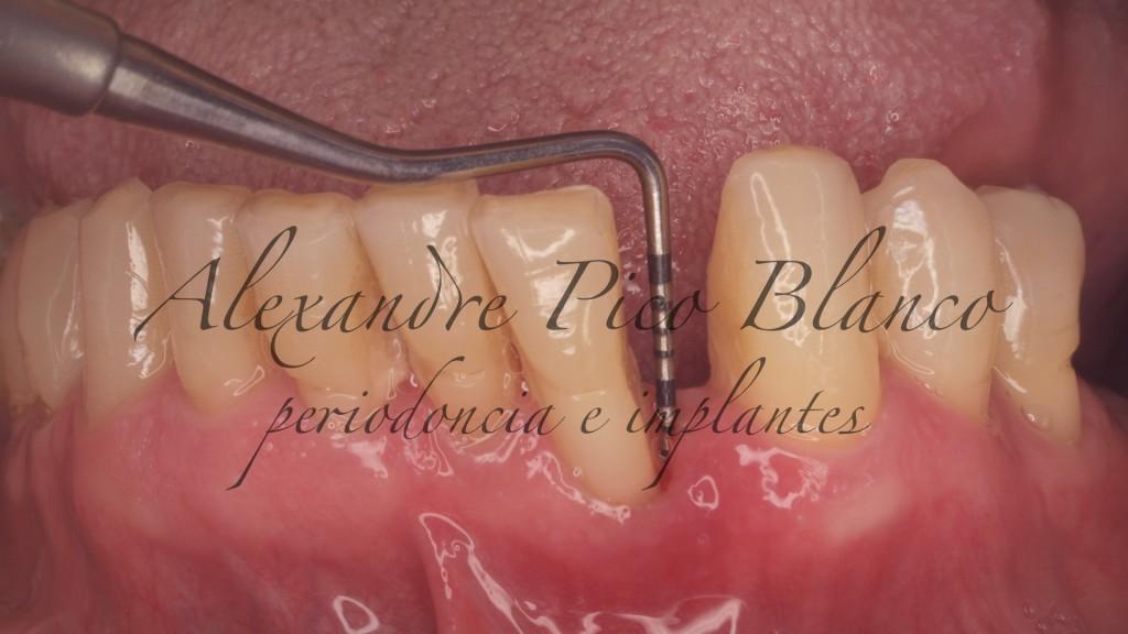 cirugia-periodontal-pico-blanco-carballo