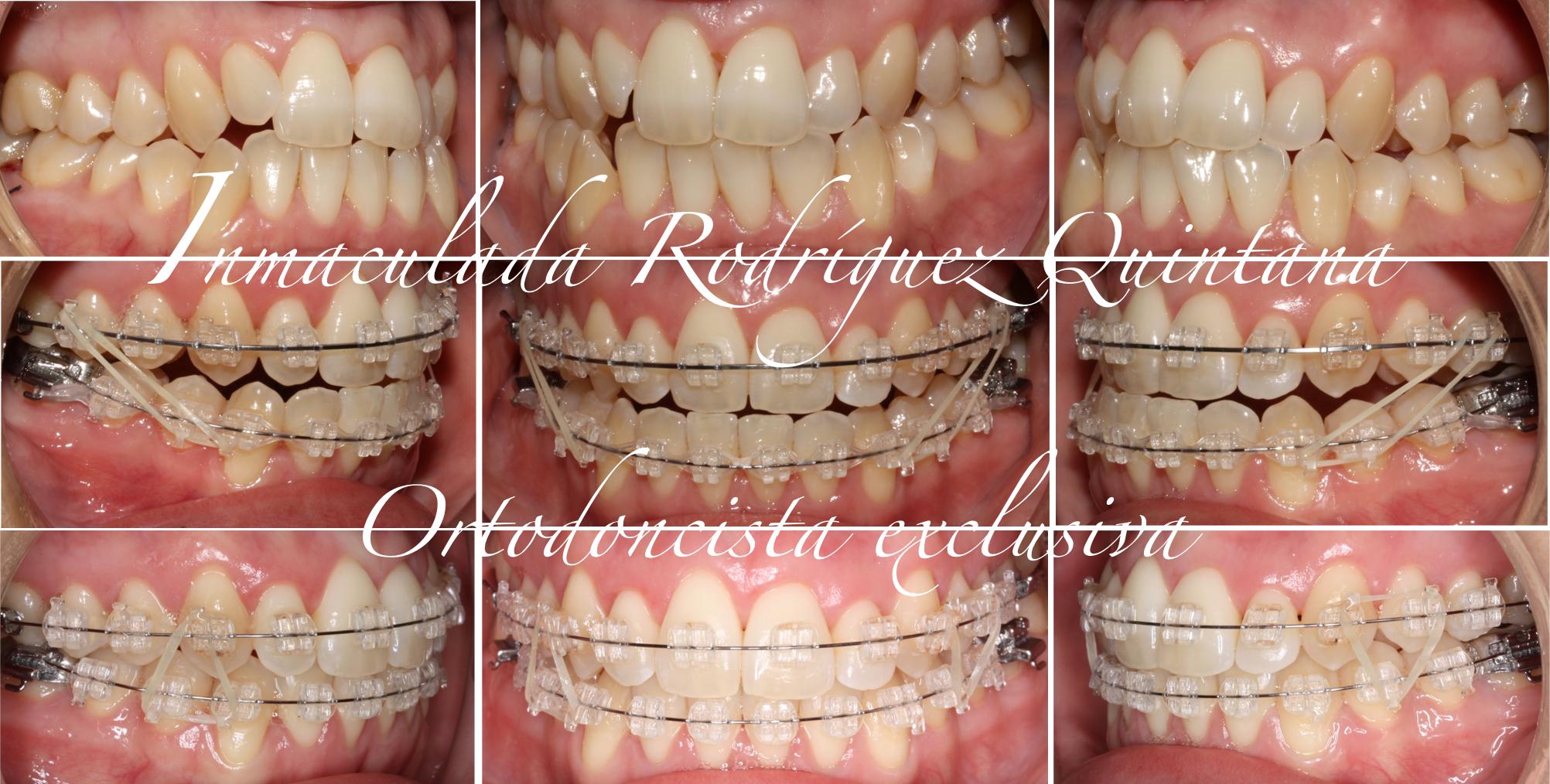 elásticos-ortodoncia-carballo