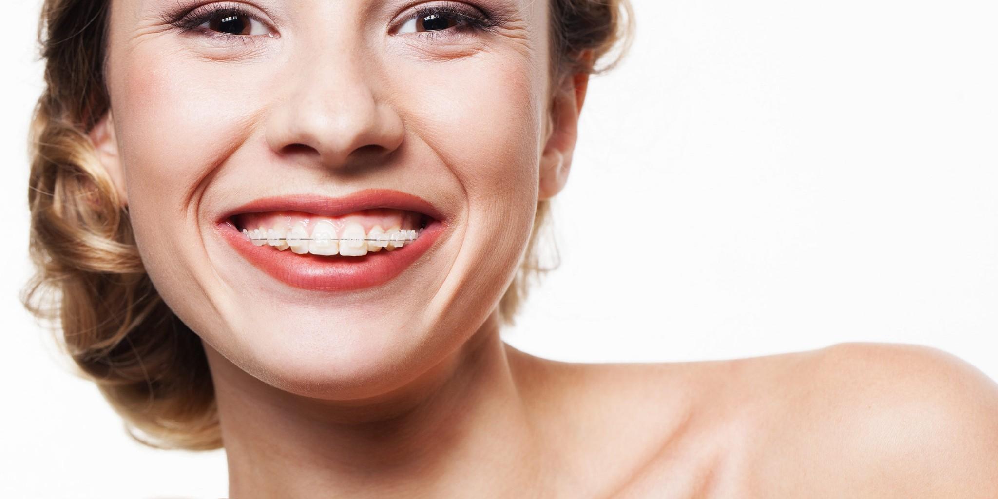 ortodoncia-embarazada-pico-blanco