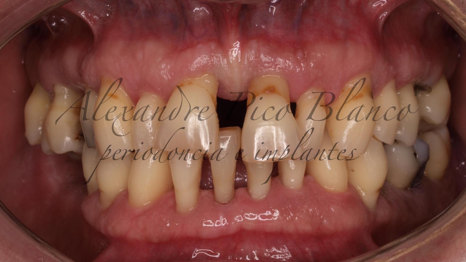 se mueven los dientes