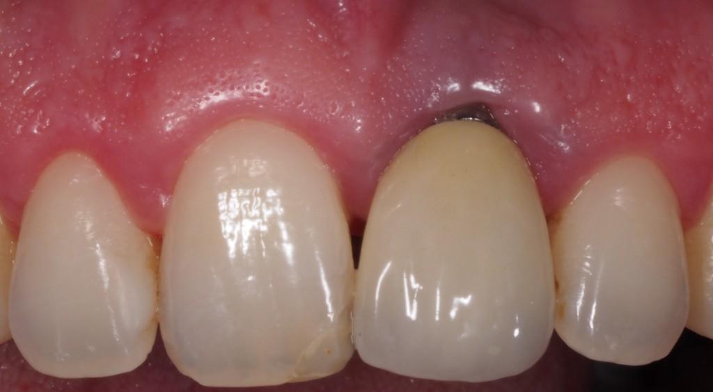 complicaciones-estéticas-implantes-dentales