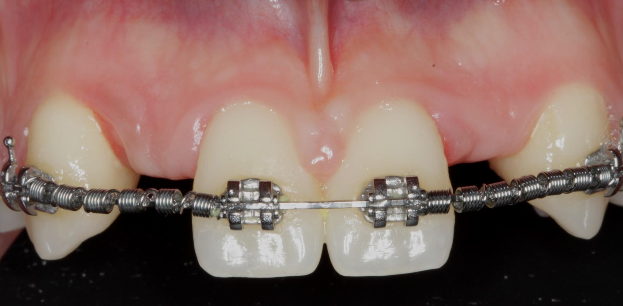 dientes-en-el-dia-carballo