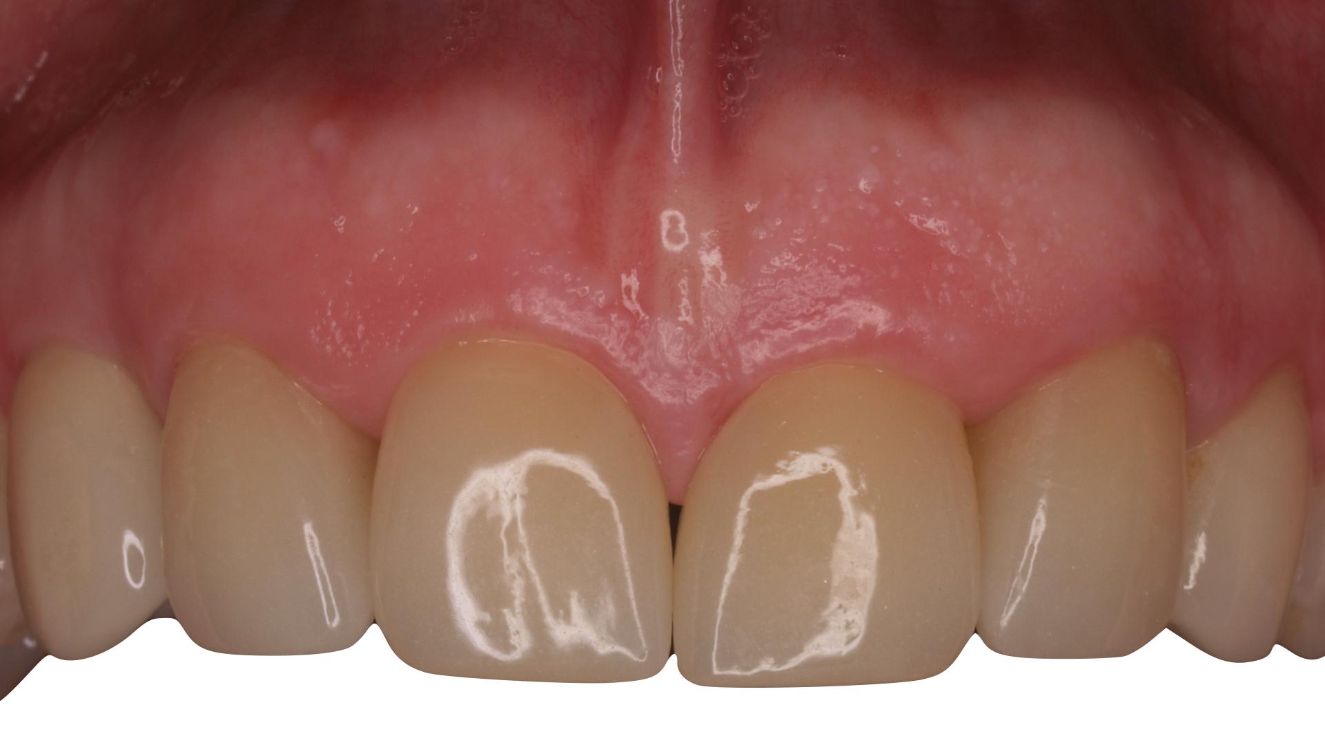 implante-inmediato-carballo