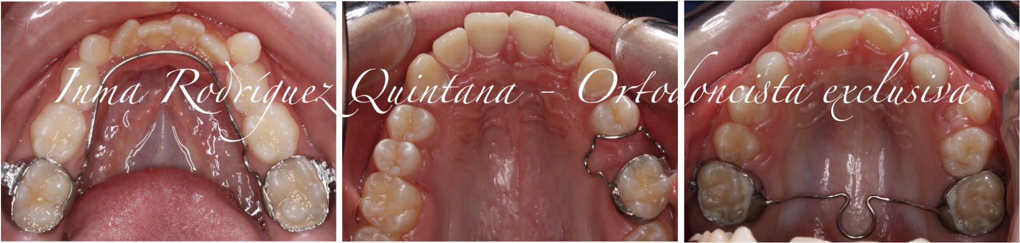 Mantenedores de espacio ortodoncia