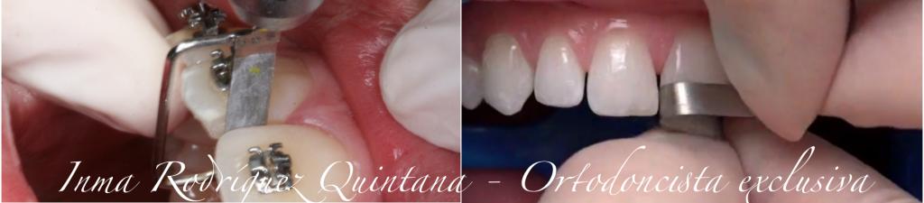 ortodoncista-carballo-stripping