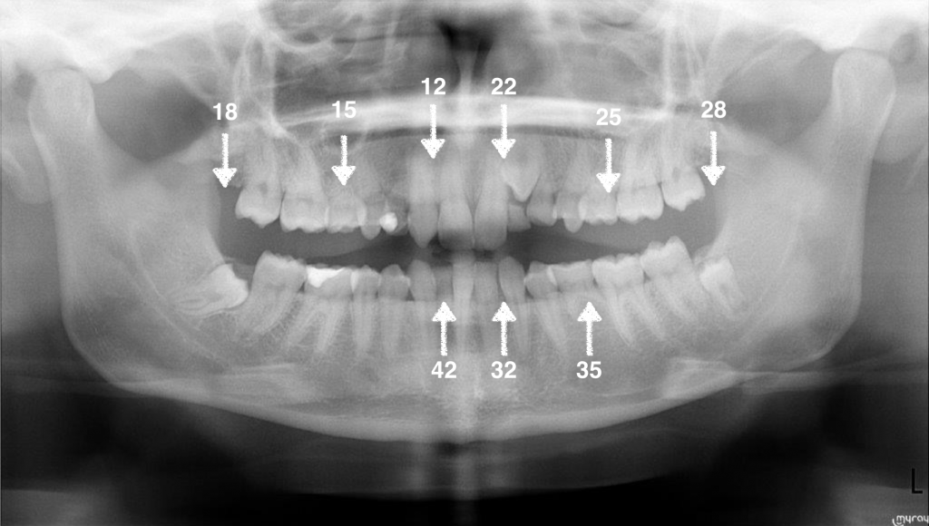 Oligodoncia - Clínica Dental Carballo