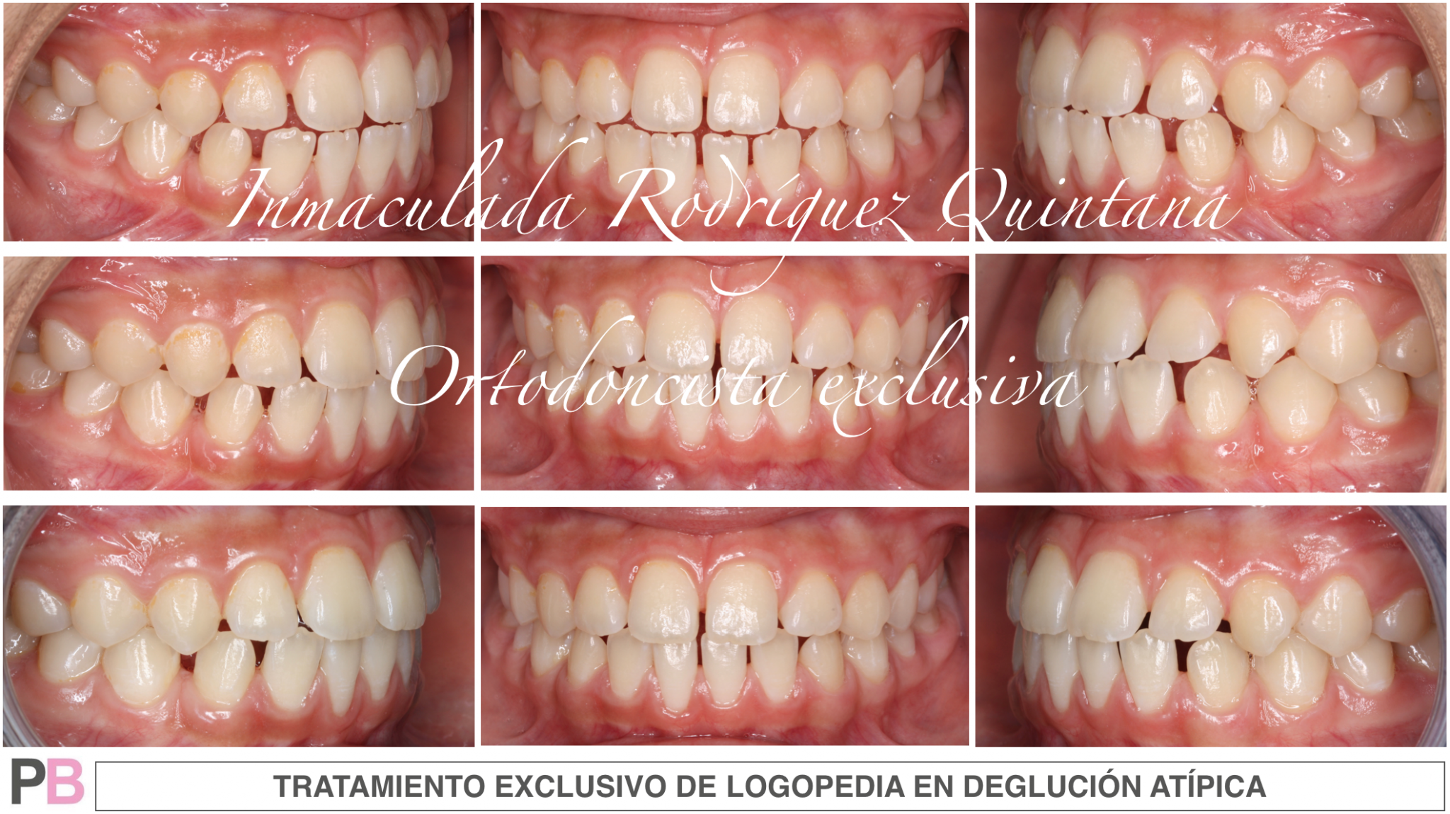 eglución atípica - Logopeda - Ortodoncia