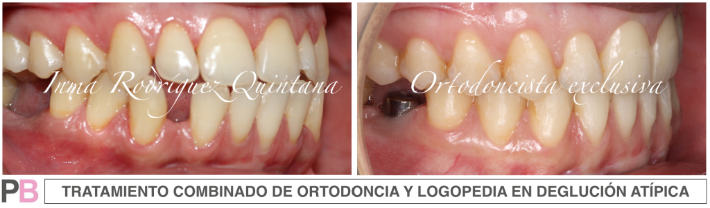 Ortodoncia y logopedia - Carballo- Clínica Dental