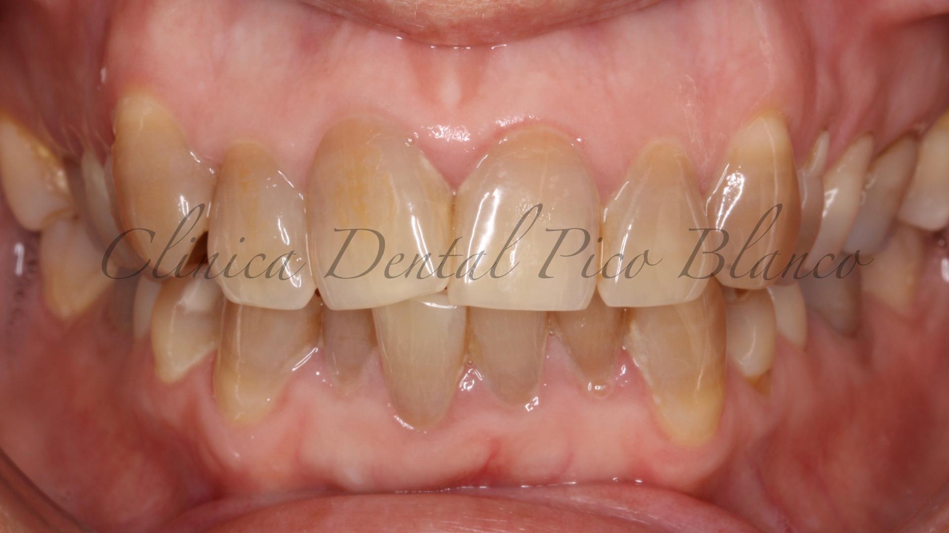 dientes-oscuros-tetraciclinas