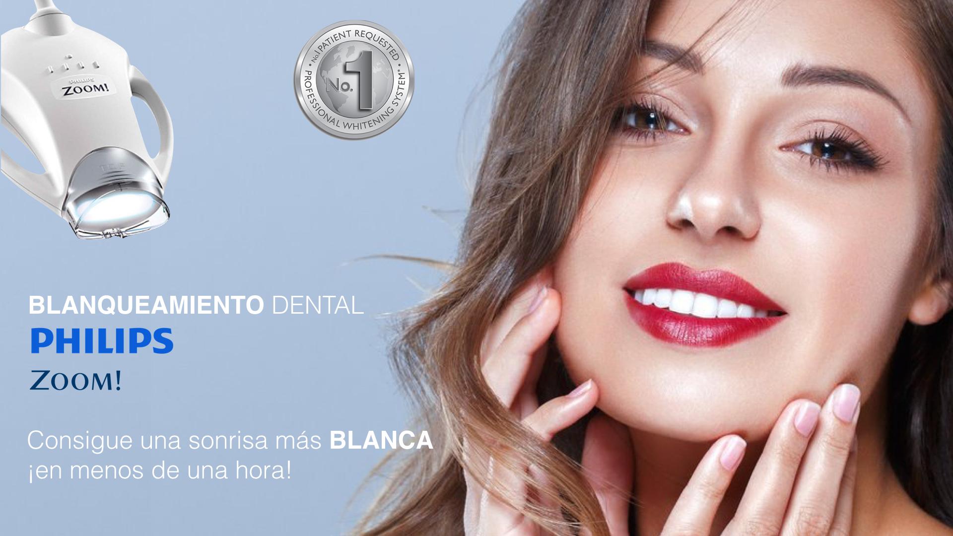 blanqueamiento-dental-carballo